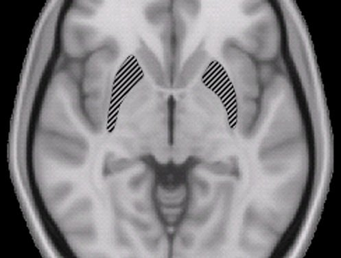 Brain X-Ray - Image: Public Domain, Wikimedia Commons