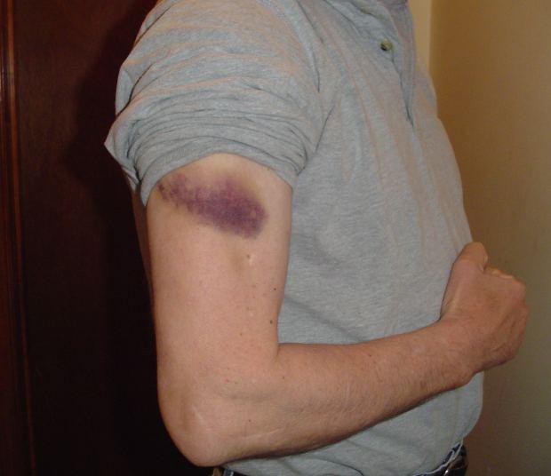 Bruise Man Arm Injury - Image: Public Domain, Morguefile