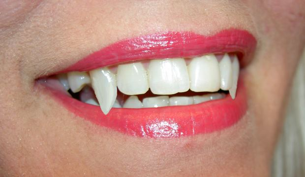 Vampire Teeth Mouth Lips Woman - Image: Public Domain, Morguefile