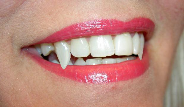 Vampire Teeth Mouth Lips Woman - Image: Public Domain, Morguefile
